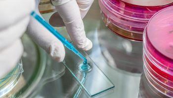 Curso Gratuito Master en Bioquímica + Titulación de Estudios de Bioquímica en el Laboratorio Clínico (Doble Titulación con Reconocimiento de Oficialidad por la Administración Pública – ESSSCAN)